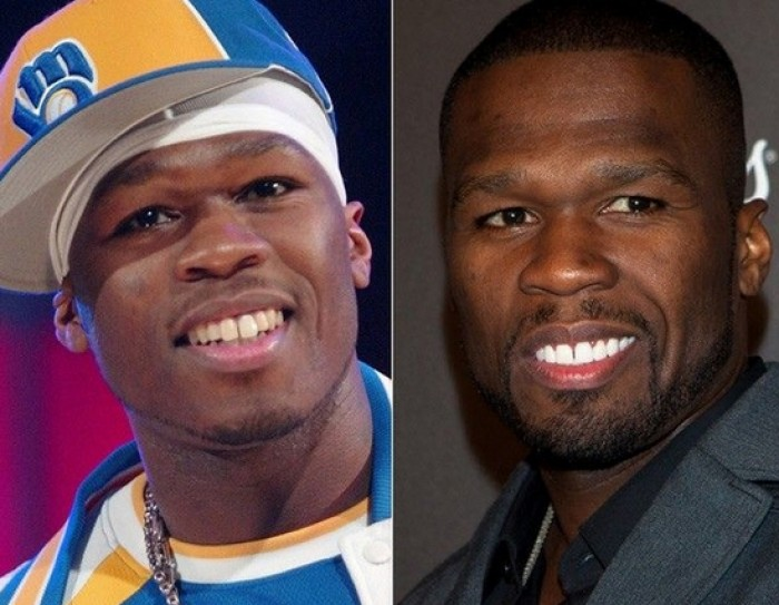 50cent-cosmetic-dentistry-antibes