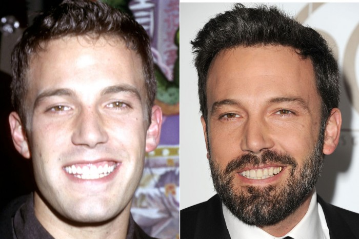 Ben-Affleck-cosmetic-dentistry-antibes