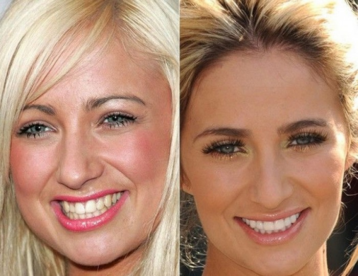 Chantelle-Houghton-cosmetic-dentistry-antibes