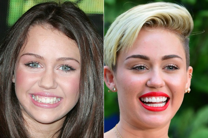 Miley-Cyrus-blanchiment-dentist-antibes