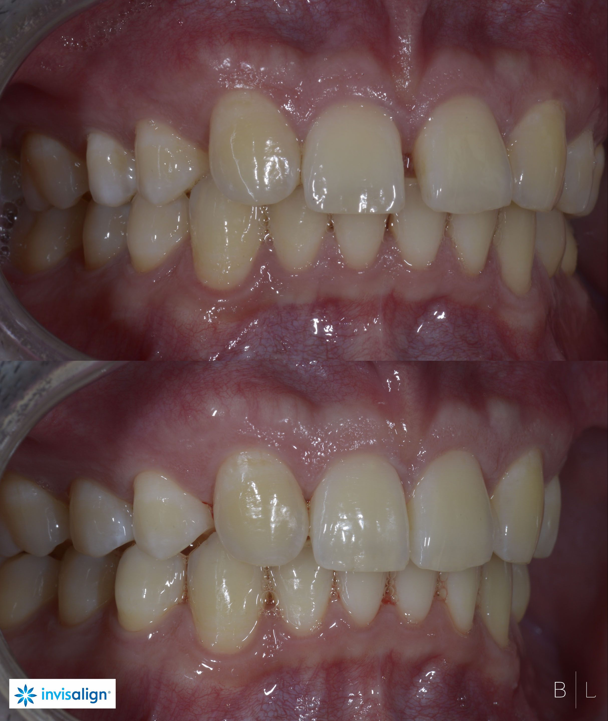 INVISALIGN-dentiste-antibes-2