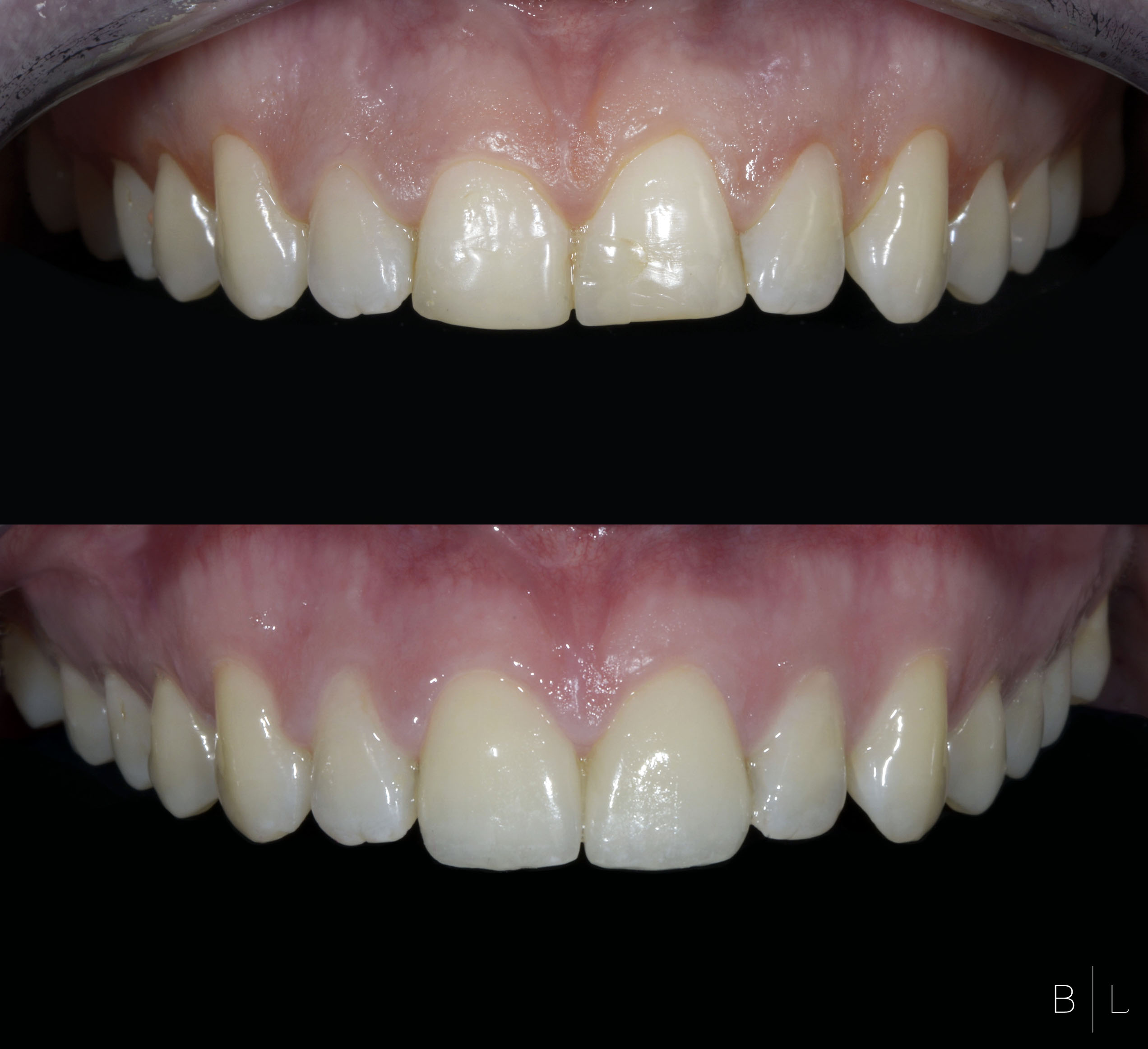VENEERSGUM-SURGERY-dentiste-antibes