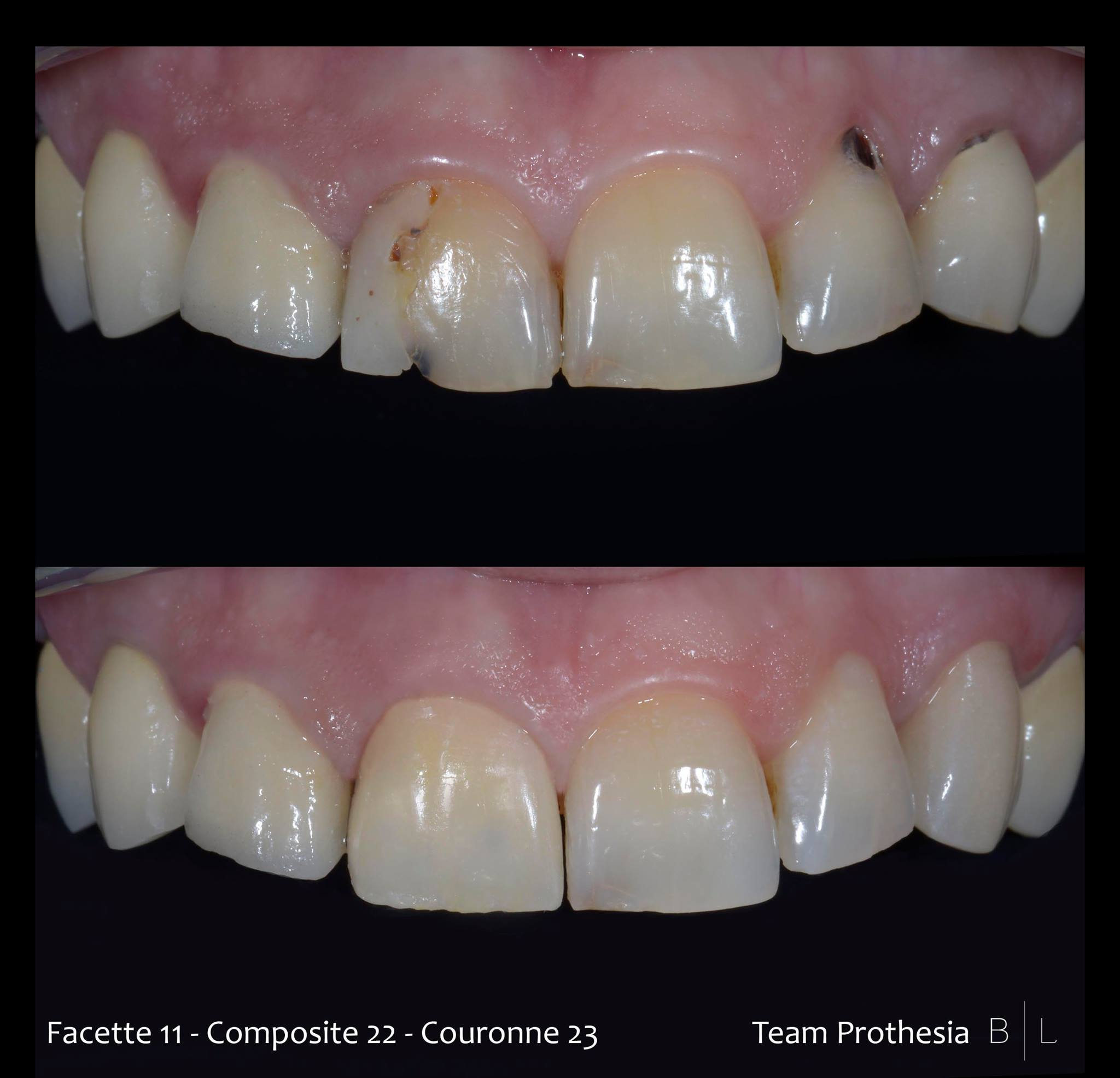 facettes-couronnes-antibes-dentiste
