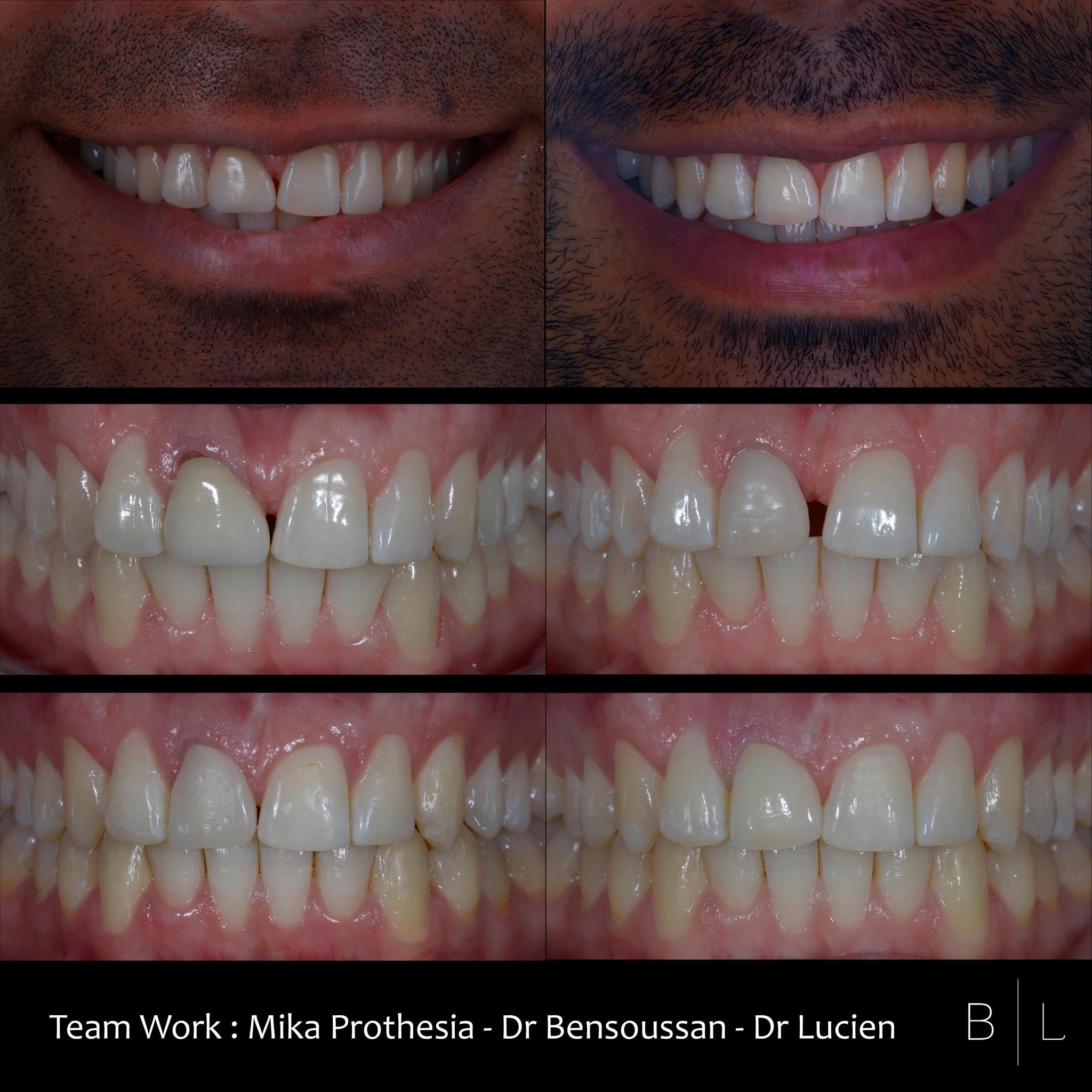 invisalign-antibes-prothese