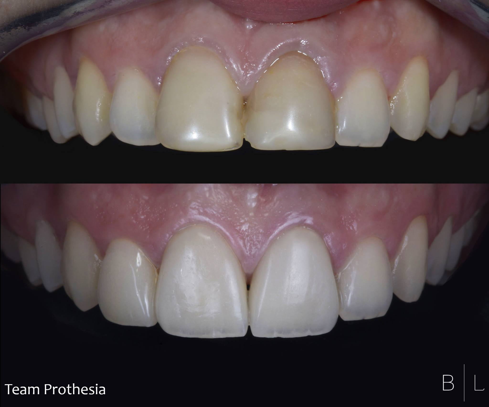 invisalign-france-06000-antibes-veneers
