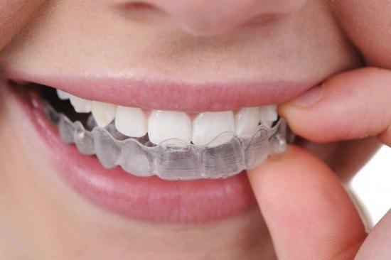nouvel appareil dentaire
