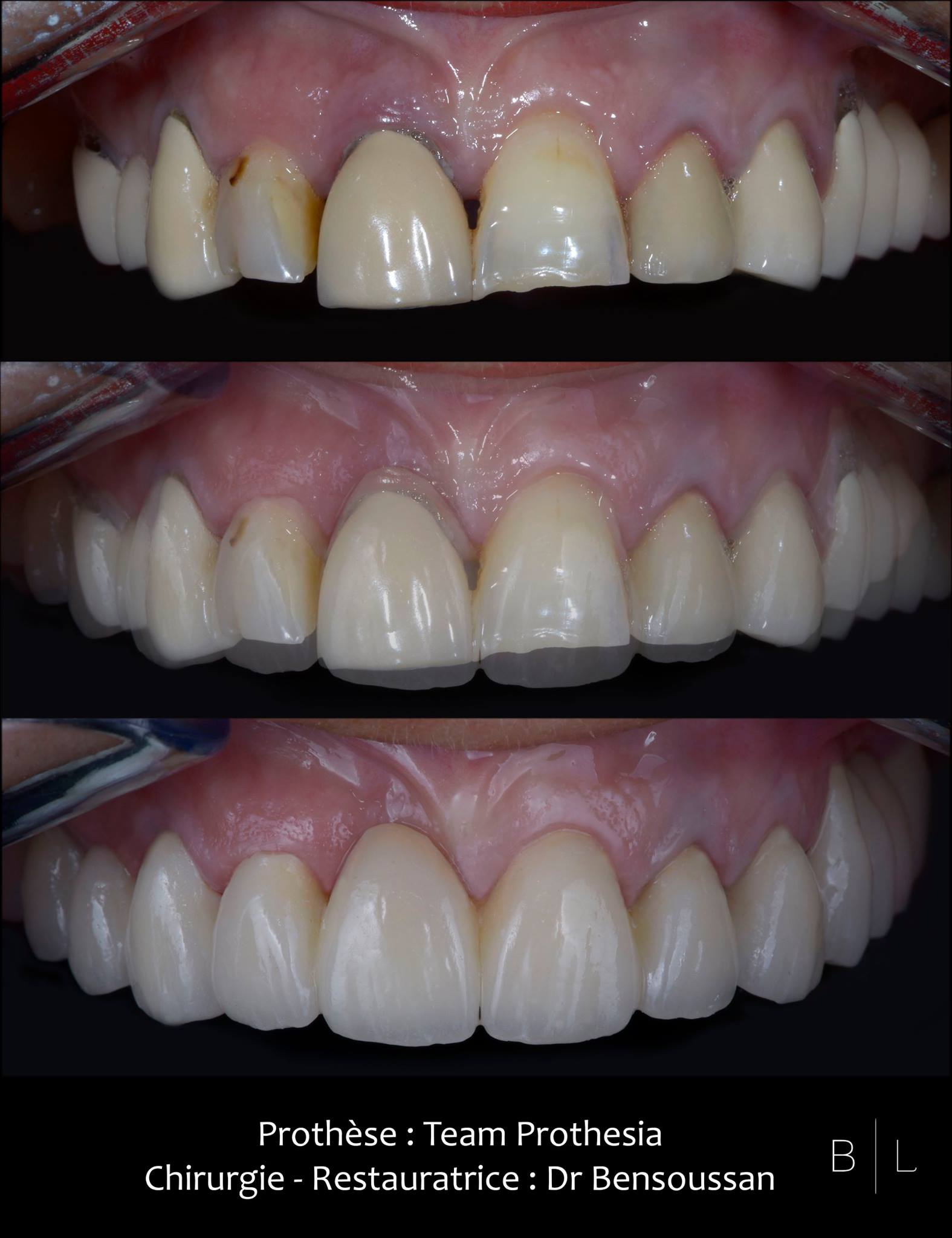 restauration-dents-dentiste-antibes